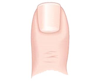 Figure 2 274px